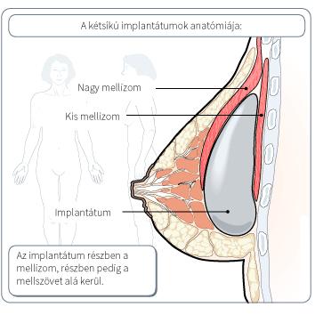 ketsiku-mellimplantatum