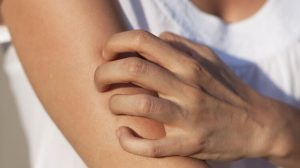 hisztamin intoleríncia tünete