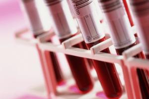 hisztamin vérvizsgálat
