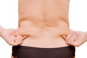 zsírleszívás középkorú nőről